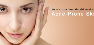 Treat Acne Prone Skin